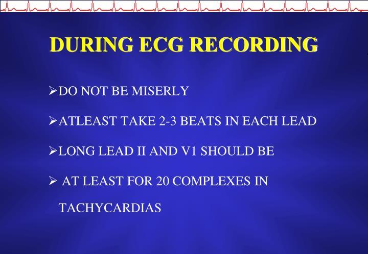 DURING ECG RECORDING