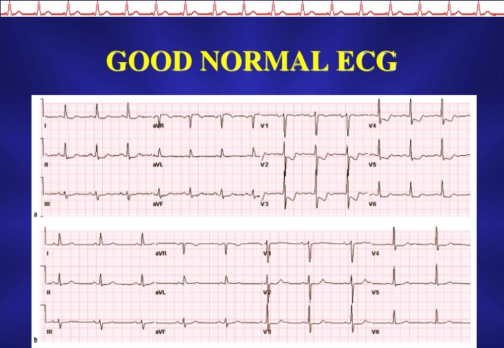 GOOD NORMAL ECG