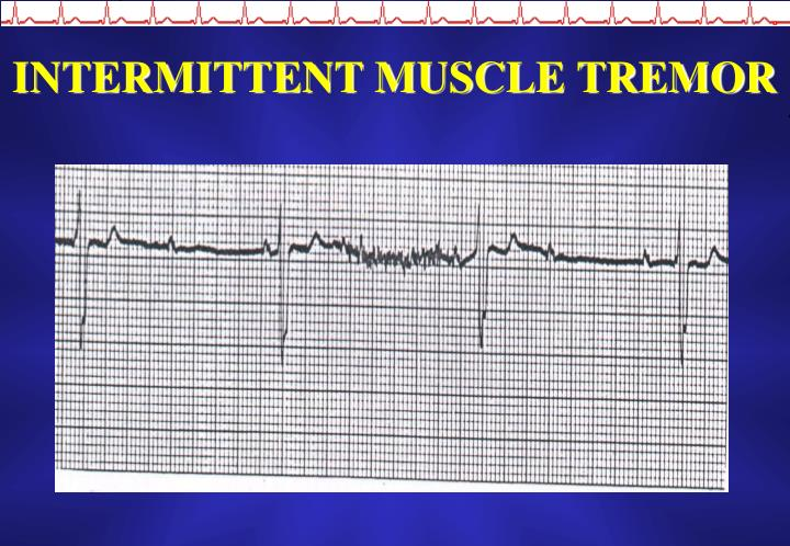 INTERMITTENT MUSCLE TREMOR