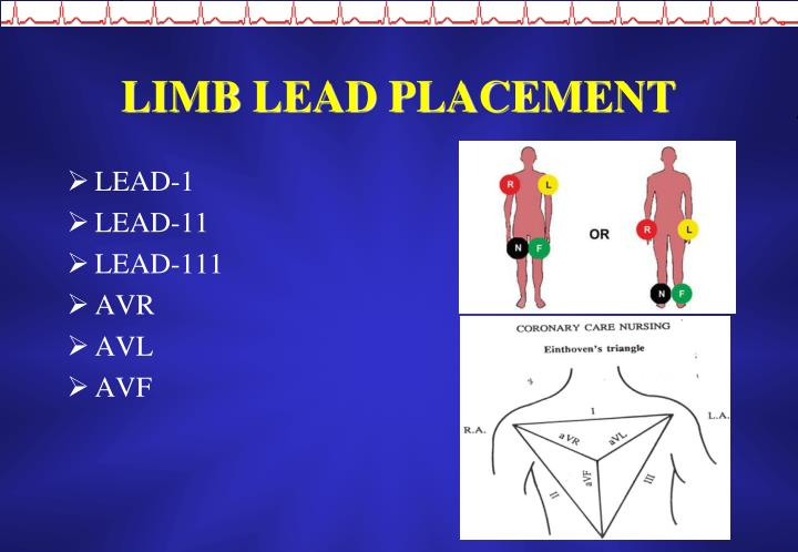 LIMB LEAD PLACEMENT