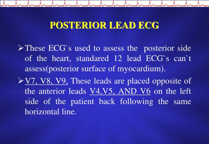 POSTERIOR LEAD ECG
