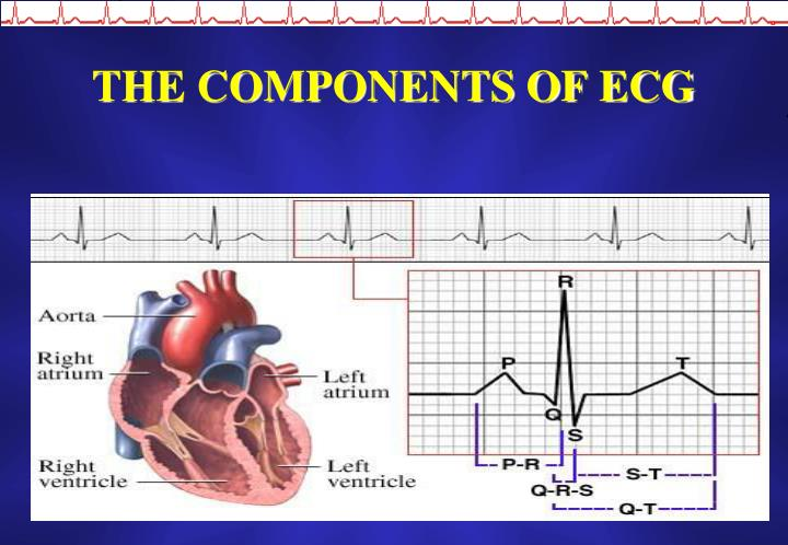 THE COMPONENTS OF ECG