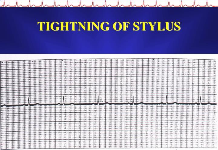 TIGHTNING OF STYLUS