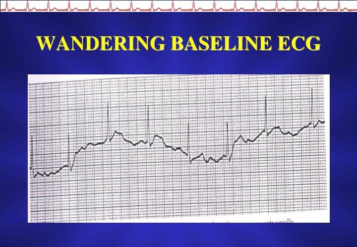 WANDERING BASELINE ECG