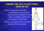 where the ecg leads wires should go
