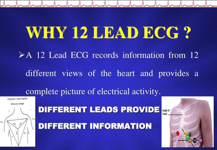 WHY 12 LEAD ECG ?