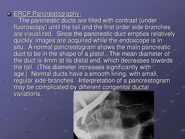 ERCP Pancreatography: