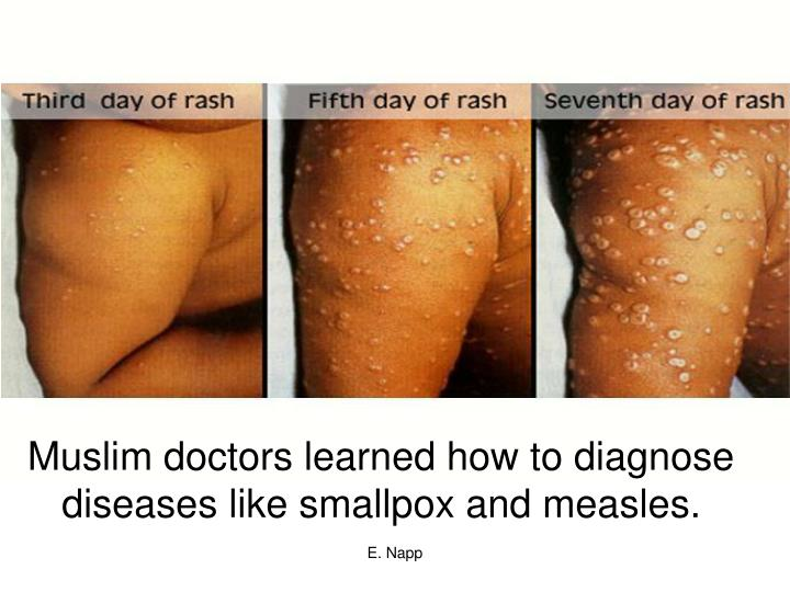 Muslim doctors learned how to diagnose