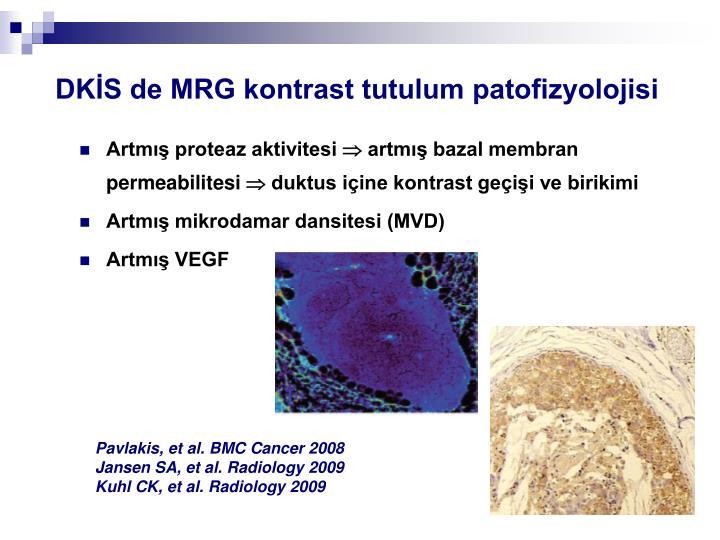 DKİS de MRG kontrast tutulum patofizyolojisi