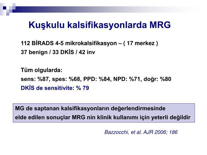 Kuşkulu kalsifikasyonlarda MRG