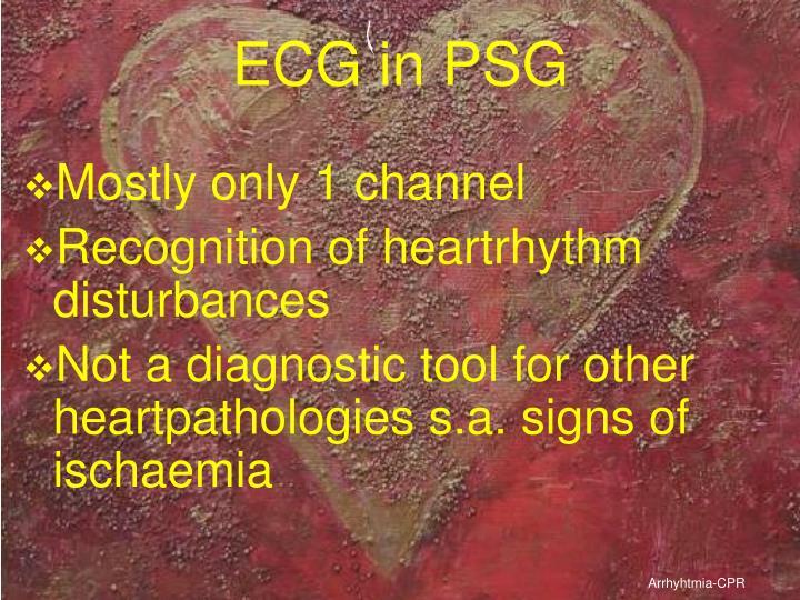 ECG in PSG