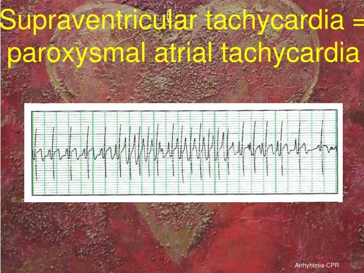 Supraventricular tachycardia = paroxysmal atrial tachycardia