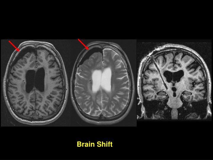 Brain Shift