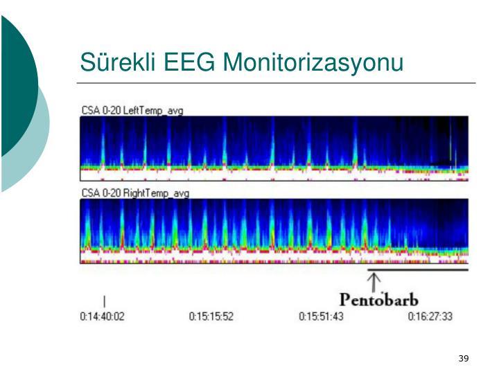 Sürekli EEG Monitorizasyonu