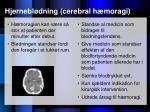 hjernebl dning cerebral h moragi