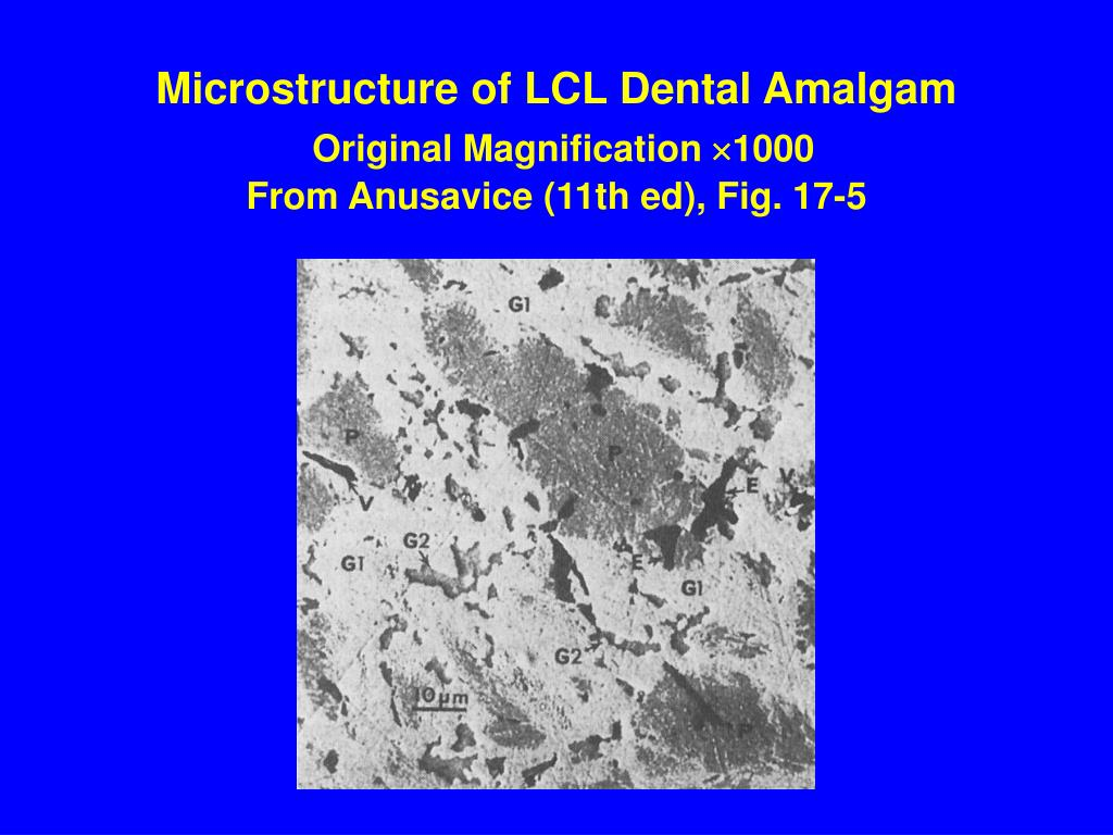 Microstructure of LCL Dental Amalgam