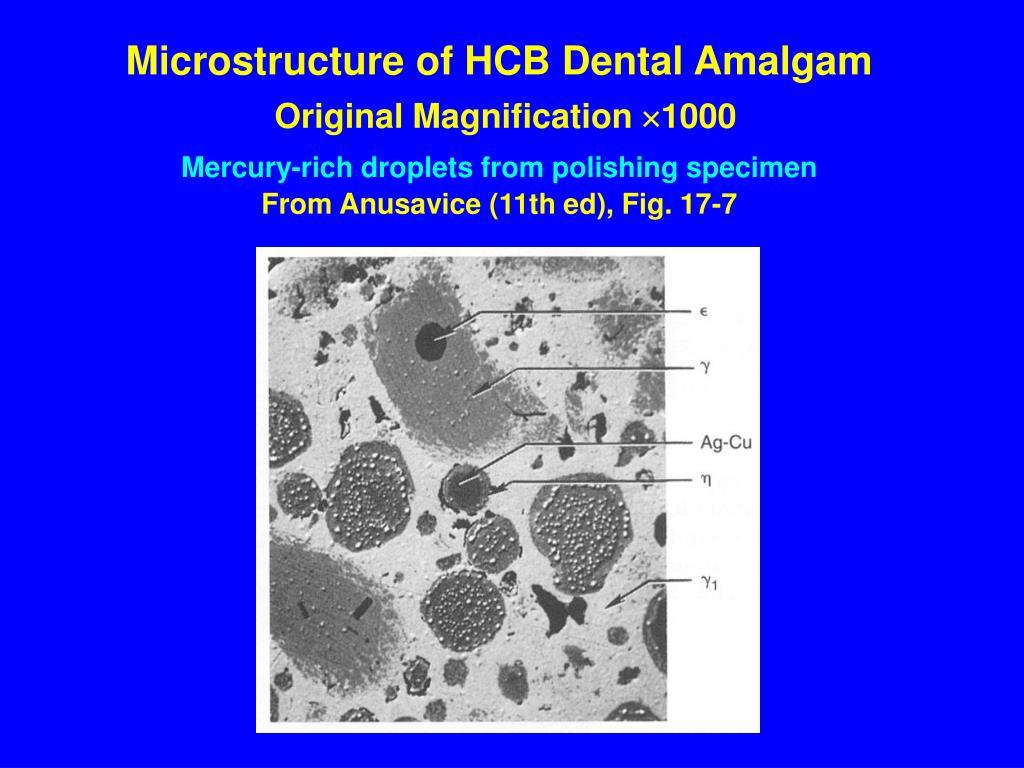 Microstructure of HCB Dental Amalgam