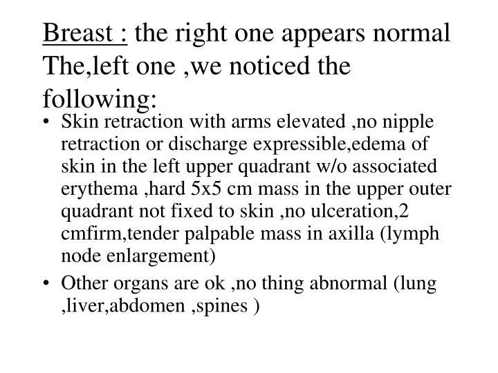 Breast :