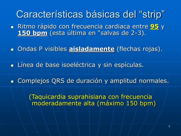 """Características básicas del """"strip"""""""