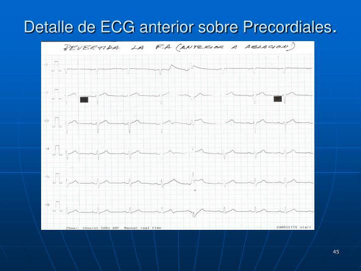 Detalle de ECG anterior sobre Precordiales