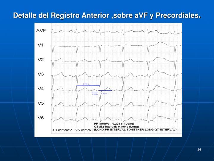 Detalle del Registro Anterior ,sobre aVF y Precordiales