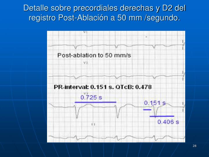 Detalle sobre precordiales derechas y D2 del registro Post-Ablación a 50 mm /segundo.