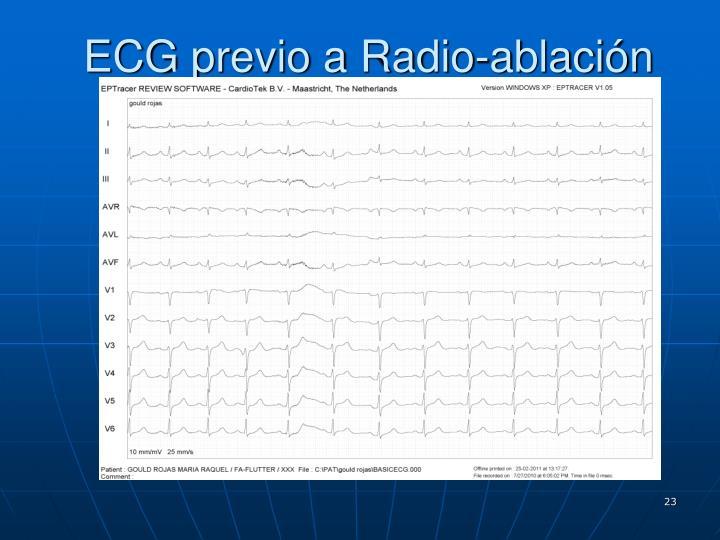 ECG previo a Radio-ablación
