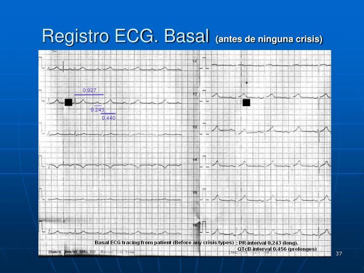 Registro ECG. Basal
