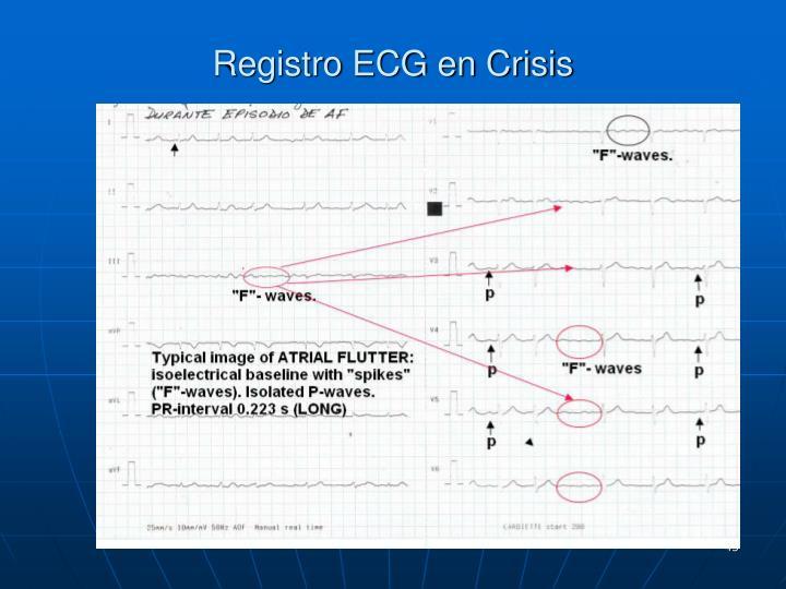 Registro ECG en Crisis