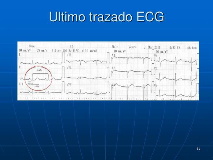 Ultimo trazado ECG