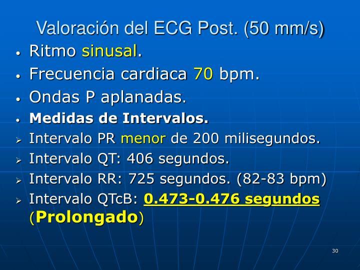 Valoración del ECG Post. (50 mm/s)