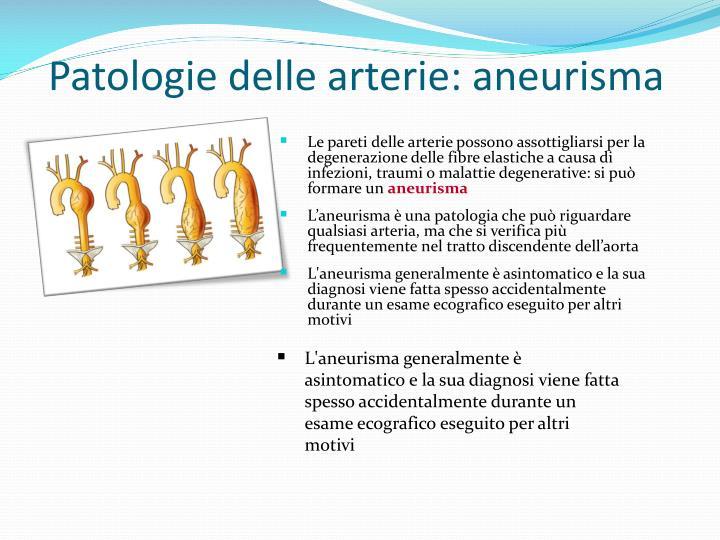 Patologie delle arterie: aneurisma