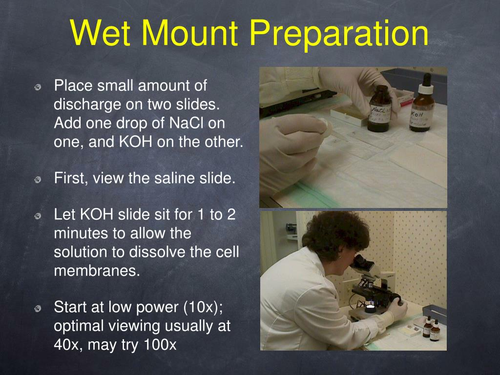 what did you observe when salt solution was added to the wet mount A vaginal wet mount  is observed by wet mount microscopy by placing the specimen on a glass slide and mixing with a salt solution  to see if bacteria, .