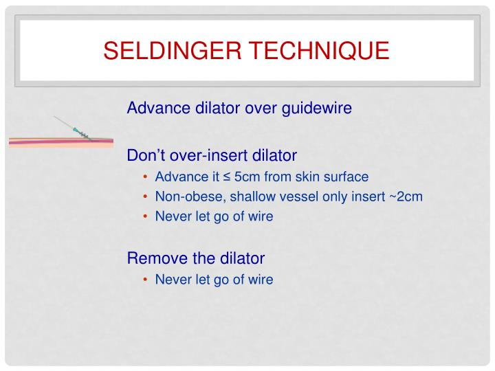Seldinger technique