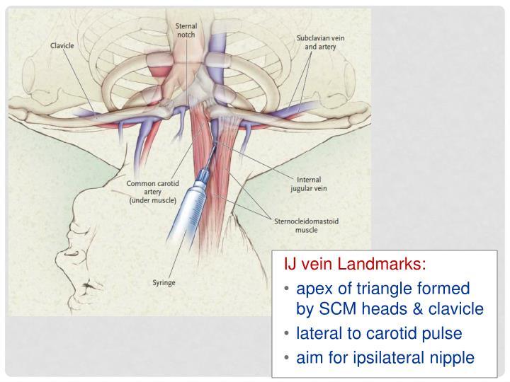 IJ vein Landmarks: