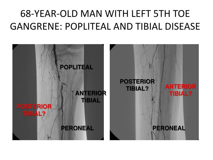 68-YEAR-OLD MAN WITH LEFT 5TH TOE GANGRENE: POPLITEAL AND TIBIAL DISEASE