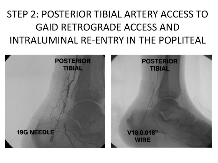 STEP 2: POSTERIOR TIBIAL ARTERY ACCESS TO GAID RETROGRADE ACCESS AND INTRALUMINAL RE-ENTRY IN THE POPLITEAL
