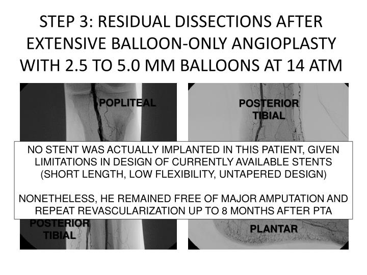 STEP 3: RESIDUAL DISSECTIONS AFTER EXTENSIVE BALLOON-ONLY ANGIOPLASTY WITH 2.5 TO 5.0 MM BALLOONS AT 14 ATM
