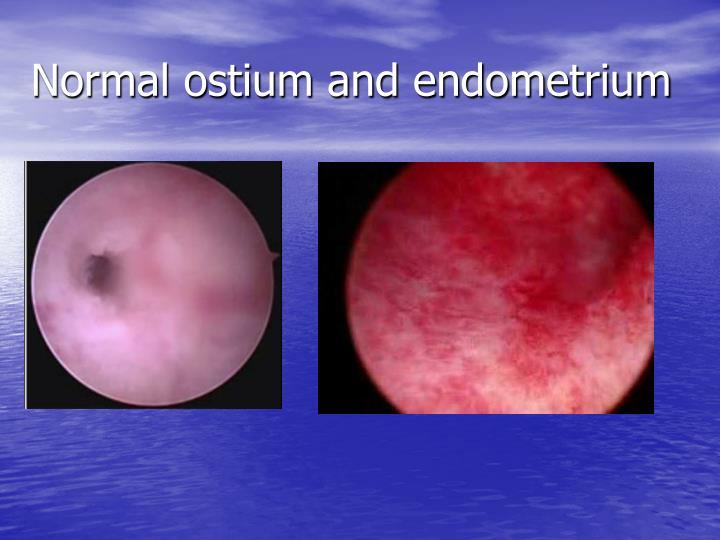 Normal ostium and endometrium