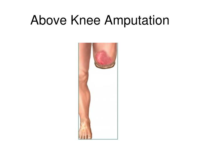 Above Knee Amputation