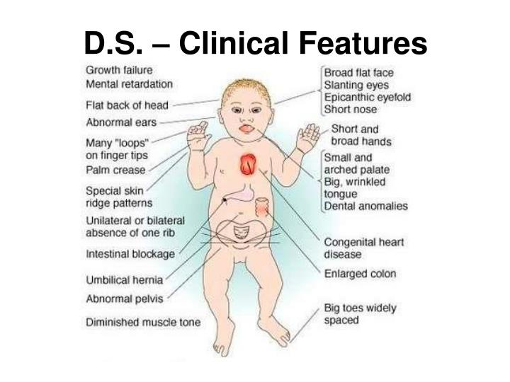 D.S. – Clinical Features