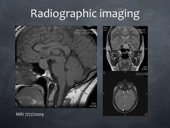 Radiographic imaging