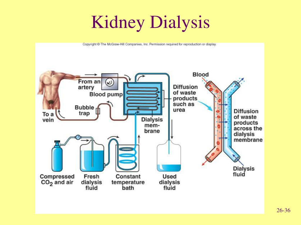 Kidney Dialysis Related Keywords - Kidney Dialysis Long ...