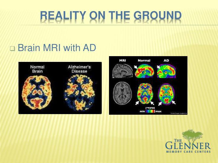 Brain MRI with AD