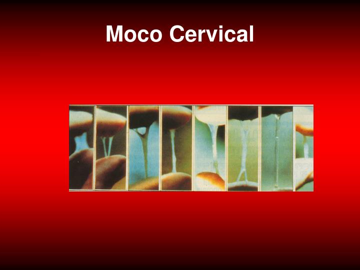 Moco Cervical