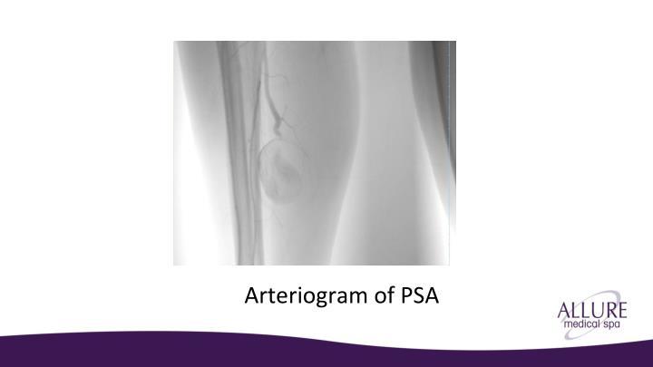 Arteriogram of PSA