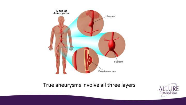 True aneurysms involve all three layers