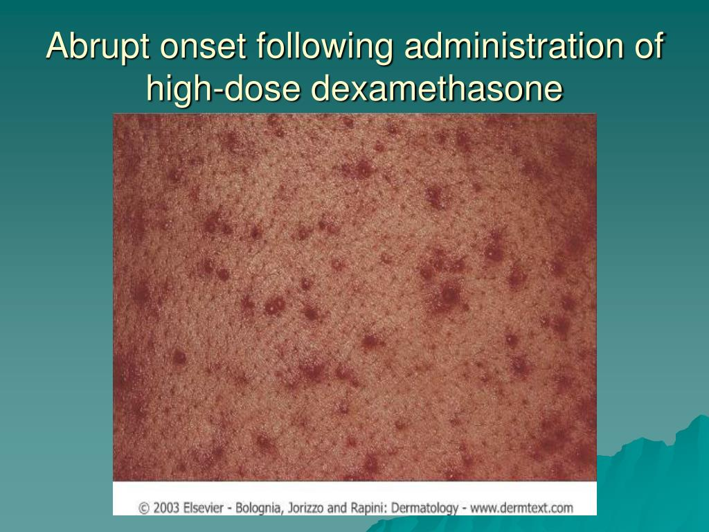 Abrupt onset following administration of high-dose dexamethasone
