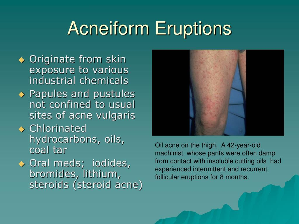 Acneiform Eruptions
