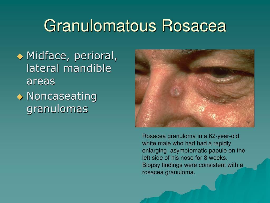 Granulomatous Rosacea